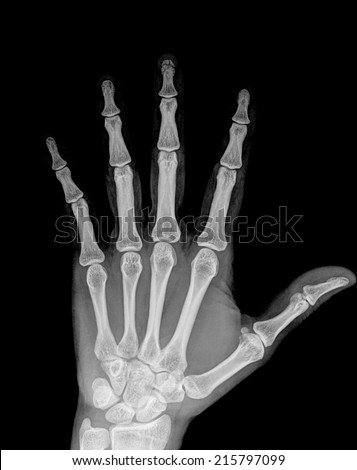 x-ray hand ( Hand Postero-anterior  ) on black background