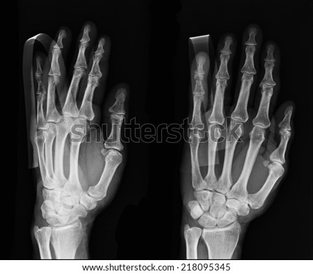 X-ray hand images