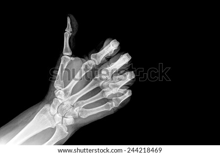 X-ray hands with GOOD sign - stock photo