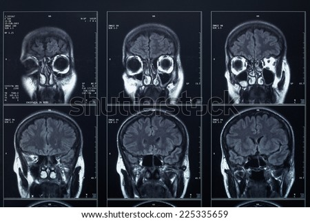X-ray head and brain - stock photo