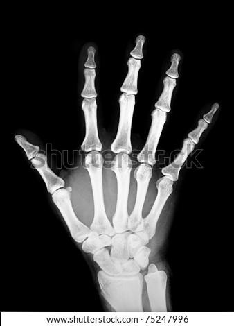 X-ray human hand - stock photo