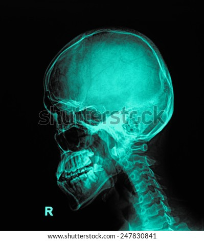 X-ray human piece of skull and spine ( cervical vertebra ) - stock photo