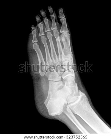 X-ray human's ankle with arthritis , side view - stock photo