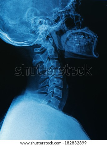 X-ray human skull and spine ( cervical spine ) - stock photo
