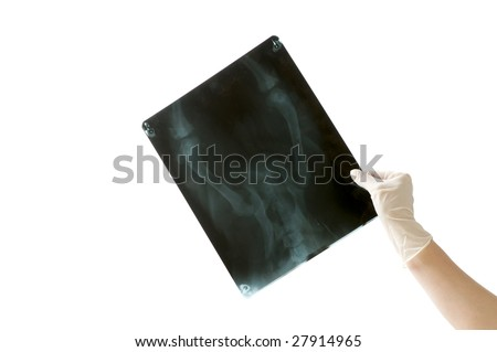 x-ray image and doctor hand isolated on white background - stock photo