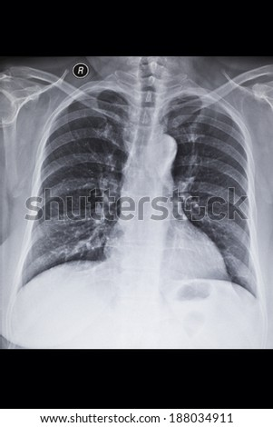 X-ray image chest