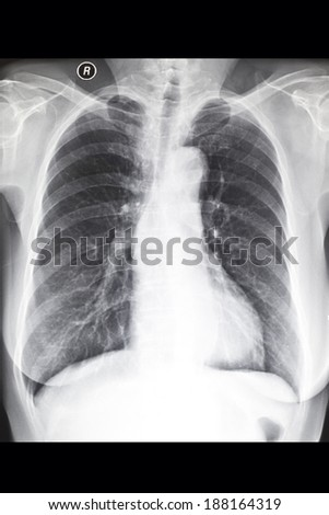X-ray image chest?The chest