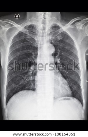 X-ray image chest?The chest - stock photo