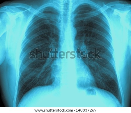 X-Ray Image Healthy Chest - stock photo