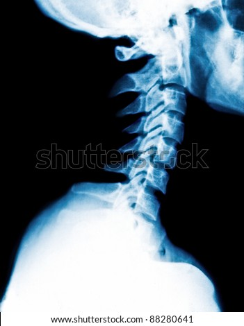X-Ray image of a human cervical spine - stock photo