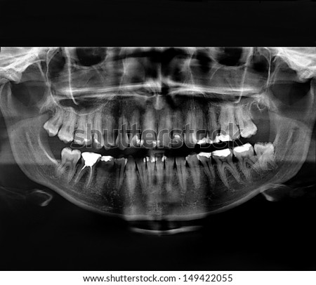 X-Ray image of a human jaw, mouth and teeth with plumbing - stock photo