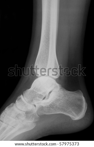 X-ray image of an ankle in the lateral position - stock photo