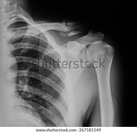 X-ray image of broken clavicle, AP view