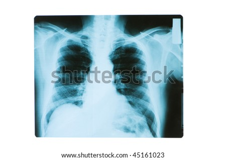 X-ray image of chest bones of adult - stock photo