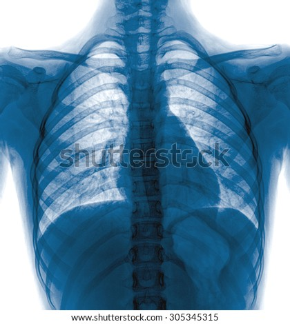 X-Ray Image Of  Chest for a medical diagnosis - stock photo