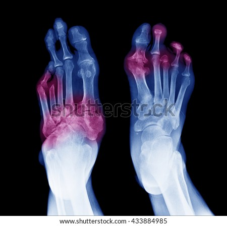 X-ray image of diabetic feet, posterior view show amputation toes and joint inflamed  - stock photo