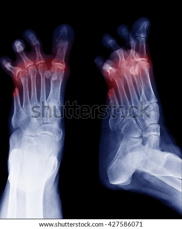 X-ray image of diabetic foot amputation, AP and oblique view, Radiography with deformed toes - stock photo