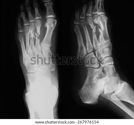 Xray Image Foot Ap Oblique View Stock Photo 267976154 Shutterstock