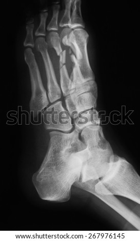 X-ray image of foot, oblique view, show fracture of the second and third metatarsal bones.