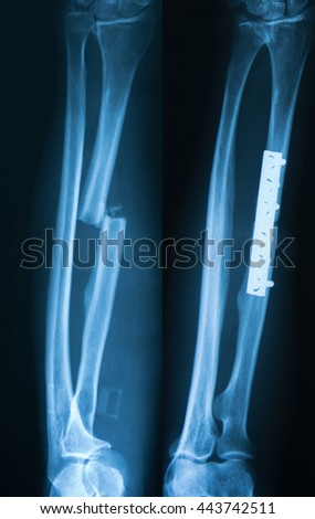 X-ray image of forearm, pre and postoperative radius fractures with internal fixation