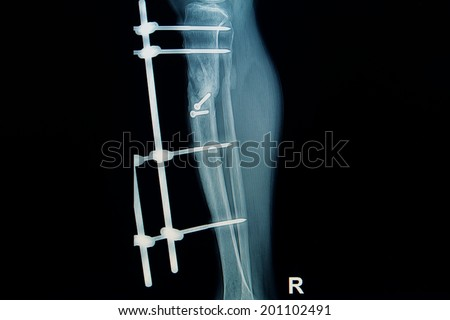 x-ray image of fracture leg ( tibia )with implant external fixation - stock photo