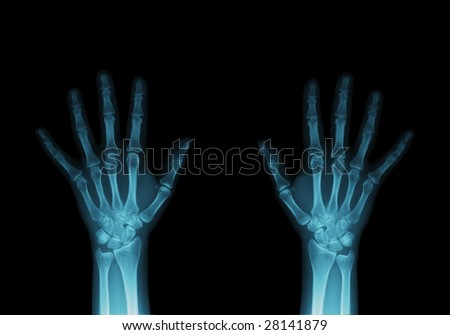 X-ray image of hands. - stock photo