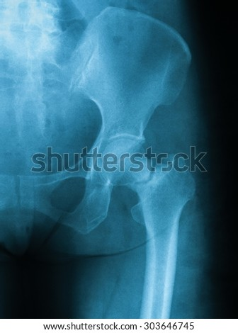X-ray image of hip joint, AP view. showing femoral neck fracture.