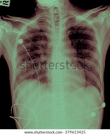 X-Ray Image Of Human Chest for a medical diagnosis  Image ID:377762059 - stock photo