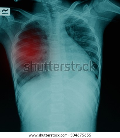 X-Ray Image Of Human Chest & Lung for a medical diagnosis - stock photo