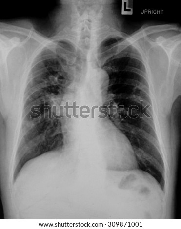 X-Ray Image Of Human Chest & Lung for a medical diagnosis