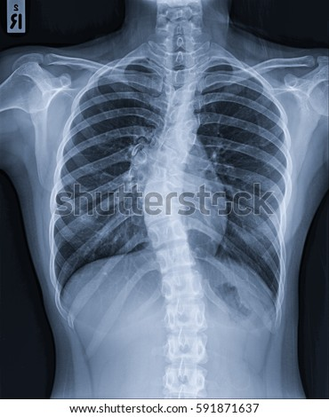 X Ray Image Human Chest Normal Heart Stock Photo (Edit Now ...  X Ray Image Hum...