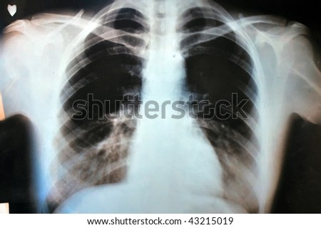 x ray image of human chest, shoulders and ribs.