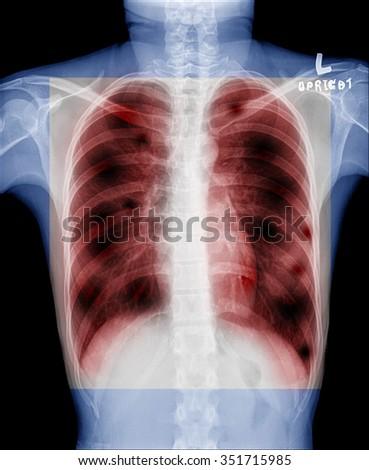 X-Ray Image Of Human Chest - TB screening - stock photo