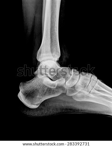 x-ray image of human foot joint - stock photo