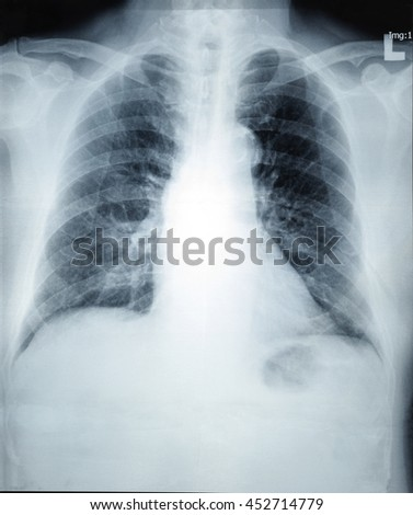 X-Ray image of human healthy chest, medical concept