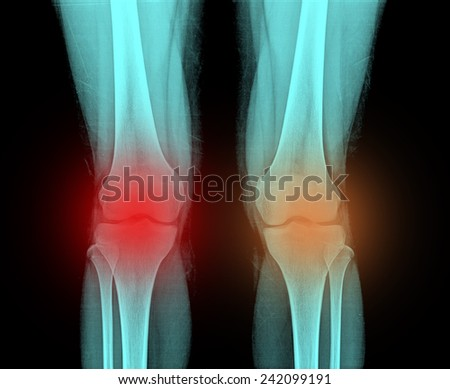 X-Ray Image of Knees. Both Left and Right Legs are included. - stock photo