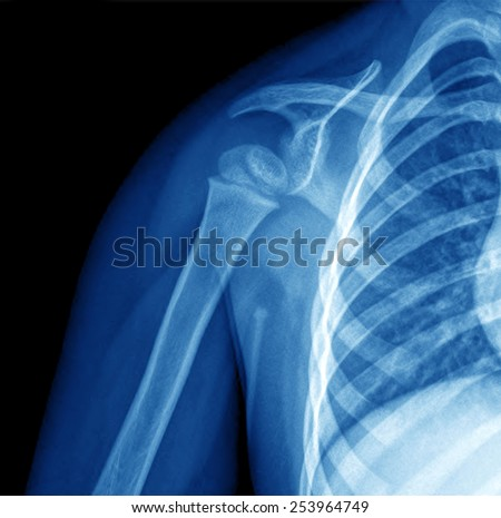 X-ray image of shoulder - stock photo