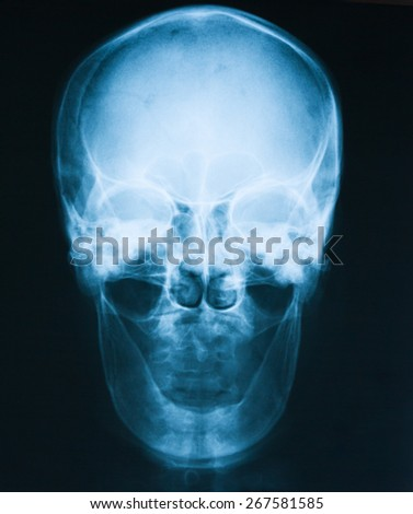 X-ray image of skull, lateral view,  a man loss of teeth. - stock photo