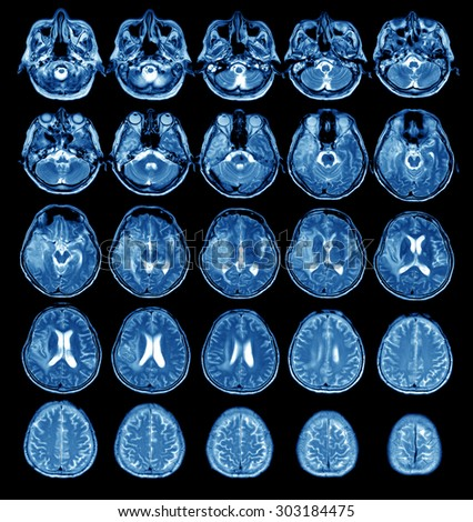 X-ray image of the brain - stock photo