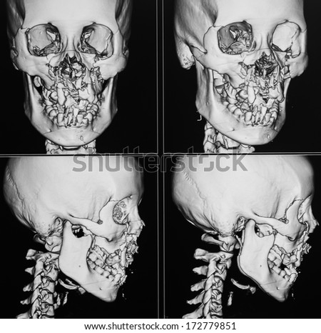 X-ray image of the skull computed tomography 3D, fracture maxilla - stock photo