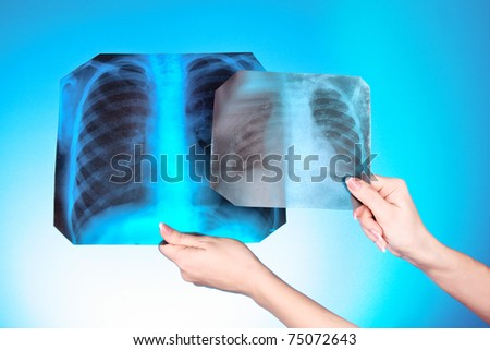 X-Ray Image of two chest on blue background in hand. One man in different age - stock photo