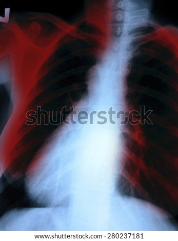 X-Ray Image Of women Chest for a medical diagnosis - stock photo