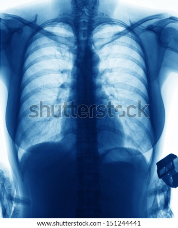 X-Ray Image Of Young Woman Chest for a medical diagnosis  - stock photo