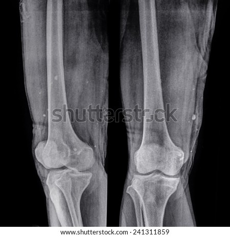 X ray images, bullets embedded in the body human - stock photo
