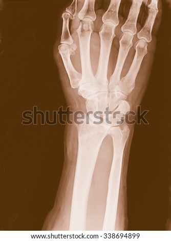 X-ray imaging of epiphysial radial fracture of wrist reduced with permanent synthetic means - stock photo