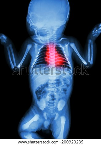 X-ray infant's body with heart disease - stock photo