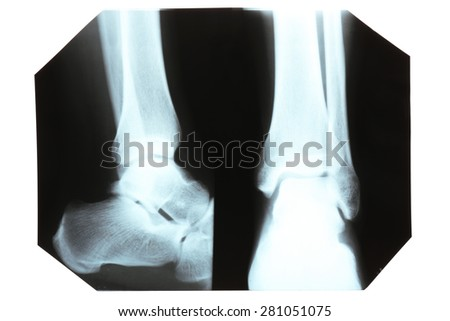 X-ray, isolated on white