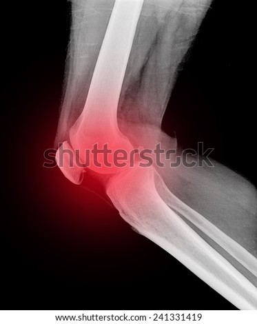 X ray MRI of Foot and Knee pain - stock photo