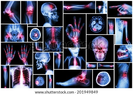 X-ray multiple part of human with multiple disease (stroke, arthritis, gout, rheumatoid, brain tumor, osteoarthritis, etc) - stock photo