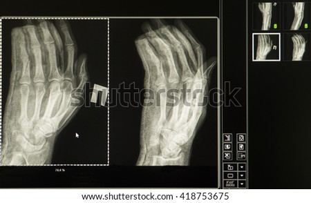X-ray of a broken man's right hand on a computer monitor - stock photo